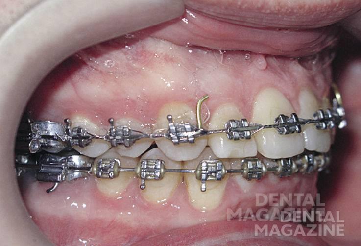 Рис. 22а. Фотографии зубных рядов пациента Н., 47 лет, в после-операционном периоде: зубные ряды в правой проекции.