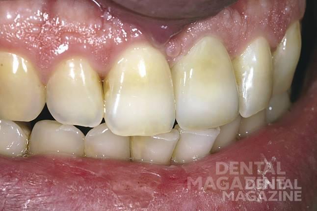 Рис. 12. Боковой и фронтальный виды готовой коронки, зафиксированной в полости рта, демонстрируют полную цветовую гармонию.