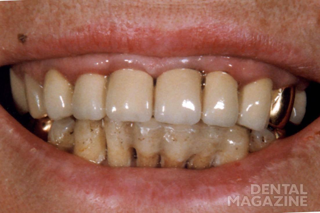 Рис. 1. Пациентка В., 1997 г. Пациентку не устраивает внешний вид фронтальной группы зубов верхней и нижней челюстей.