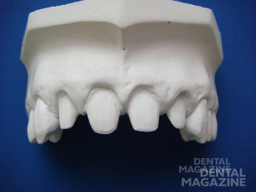 Отпрепарированные зубы на модели. Рис. 7а.