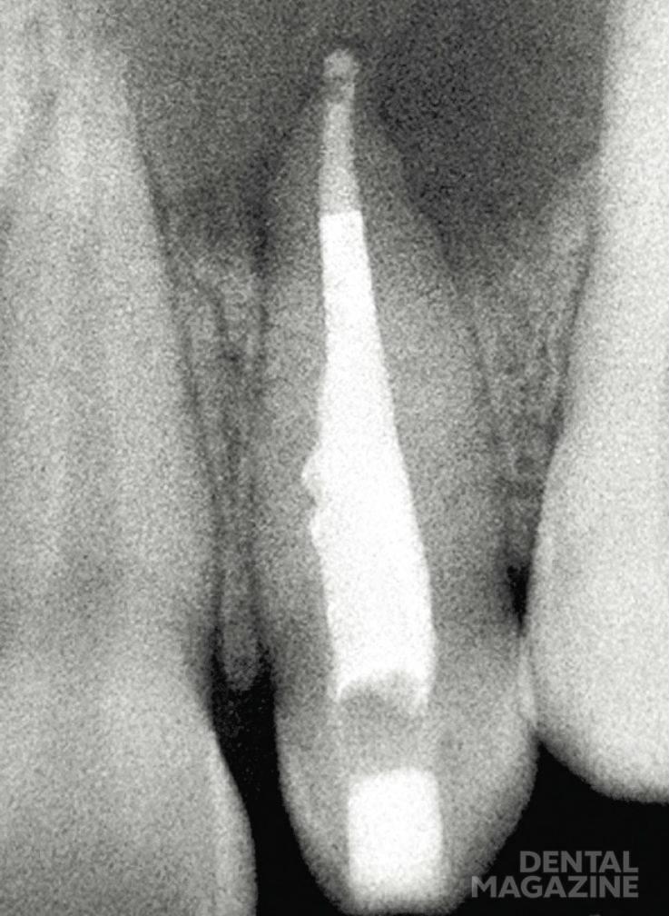 Рис. 10б. Пример проведения лечения: лечение инвагинации и эндодонтическое лечение корневого канала. 22-й зуб с инвагинацией II типа по Oehlers и разрежением в области периапикальных тканей. После устранения инвагинации и проведения эндодонтического лечения корневого канала (верхушечное отверстие закрыто при помощи МТА) жалоб нет. Состояние через десять месяцев после пломбирования канала: на рентгенограмме определяется восстановление структуры костных тканей в области большого костного дефекта (реоссификация).