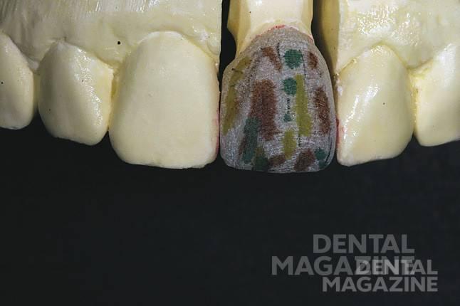 Рис. 11. Используя маркер, задаем морфологию зуба и формируем тонкую текстуру поверхности.