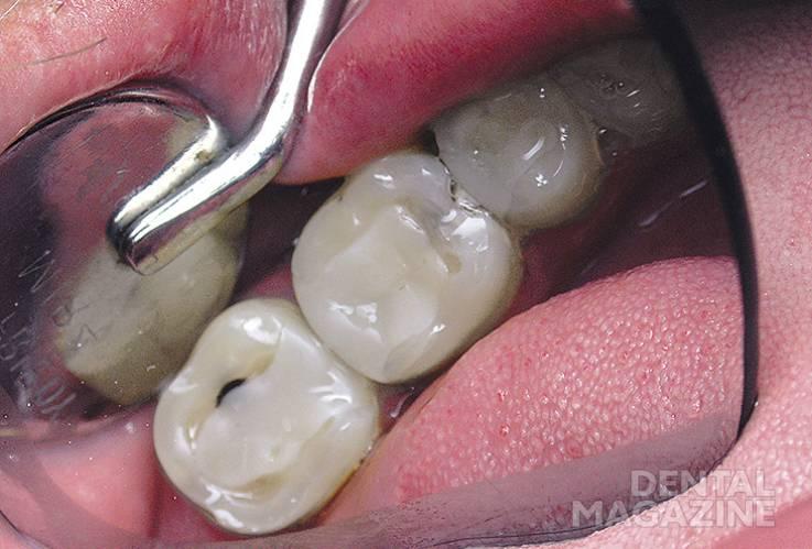 Рис 1. Исходная клиническая ситуация: зубы 2.5, 2.6 и 2.7 — имеются скрытые кариозные полости на контактных поверхностях.