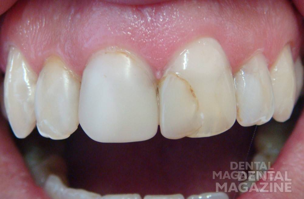 Предварительная коррекция формы зубов не требуется. Рис 1а.