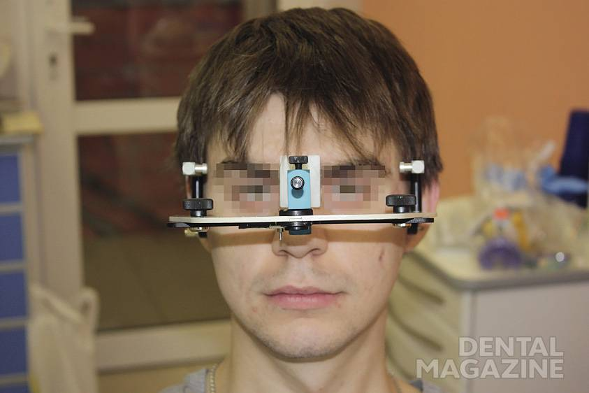 Рис. 1. Лицевая дуга, имеющая наклон относительно вертикальной линии головы из-за разного уровня слуховых проходов.