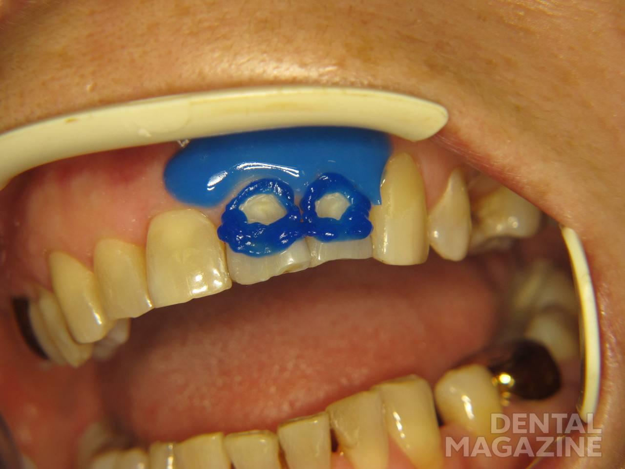 Рис. 2. Изоляция жидким коффердамом LCDam (VOCO) и кондиционирование эмали зубов 2.1 и 2.2.