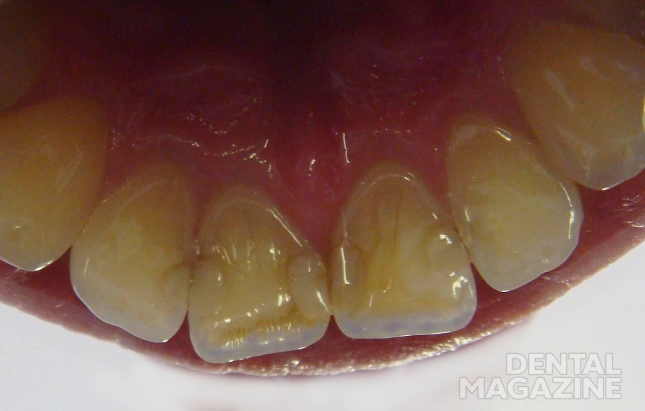 Рис. 2. Небная поверхность фронтальных зубов.