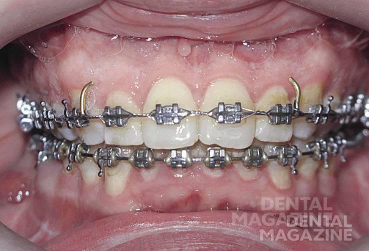 Рис. 22б. Фотографии зубных рядов пациента Н., 47 лет, в после-операционном периоде: зубные ряды в прямой проекции.